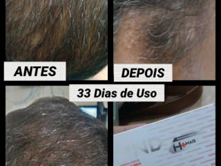 HND FEMME LIFT HAIR, SKIN & NAILS
