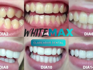 WHITEMAX CLAREADOR DENTAL